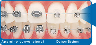 aparelho-dentario-Damon-System